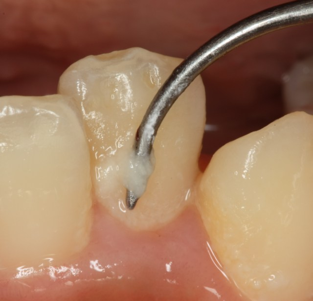 なぜ「虫歯」になりますか? caries 3