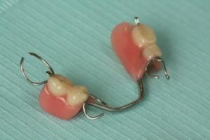 photo-denture